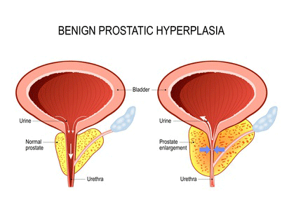 BPH Enlarged Prostate